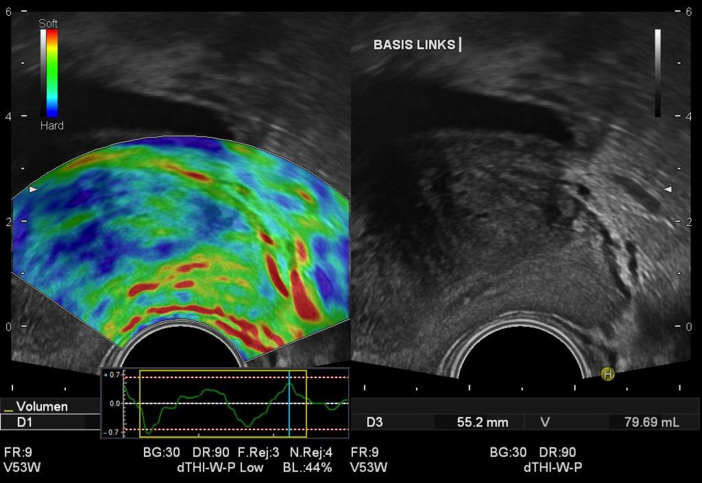 Elastographie mit Prostatakarzinom: Tumorherd stellt sich blau dar.